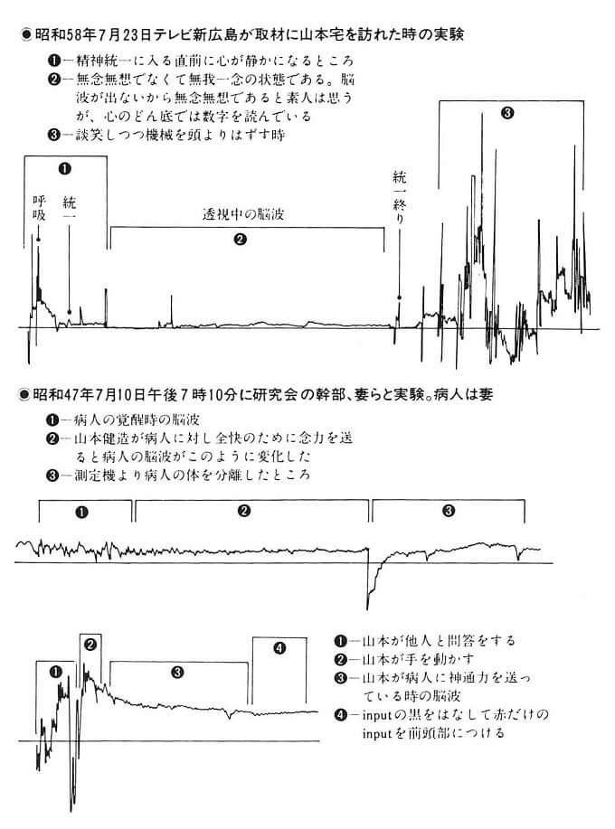 山本健造先生の脳波